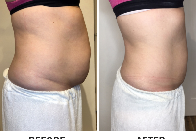Abdominal CryoSlimming (cryolipolysis) Before and After | Side View - Trim Studio