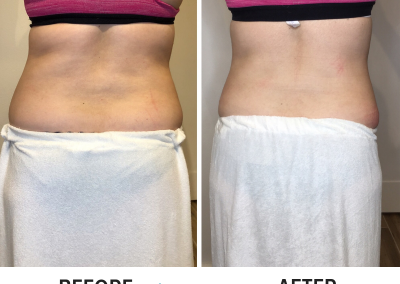 Abdominal CryoSlimming (cryolipolysis) Before and After | Back View - Trim Studio