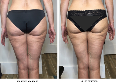 Cryoskin Before and After - Non Surgical Brazilian Butt Lift
