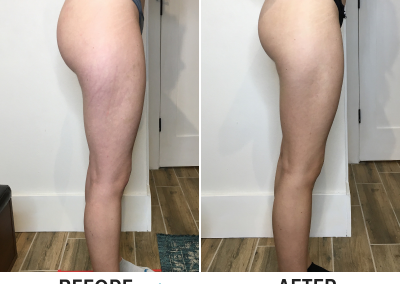 Cryoskin 3.0 Before and After - Trim Studio