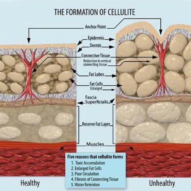 Reasons for Cellulite - Trim Studio Cryoskin Clearwater, FL