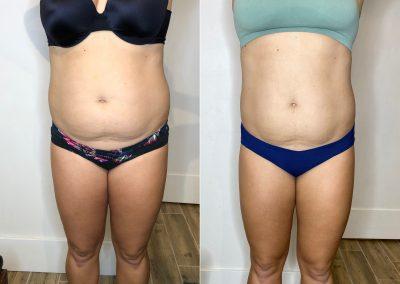 Verju Laser Fat Loss