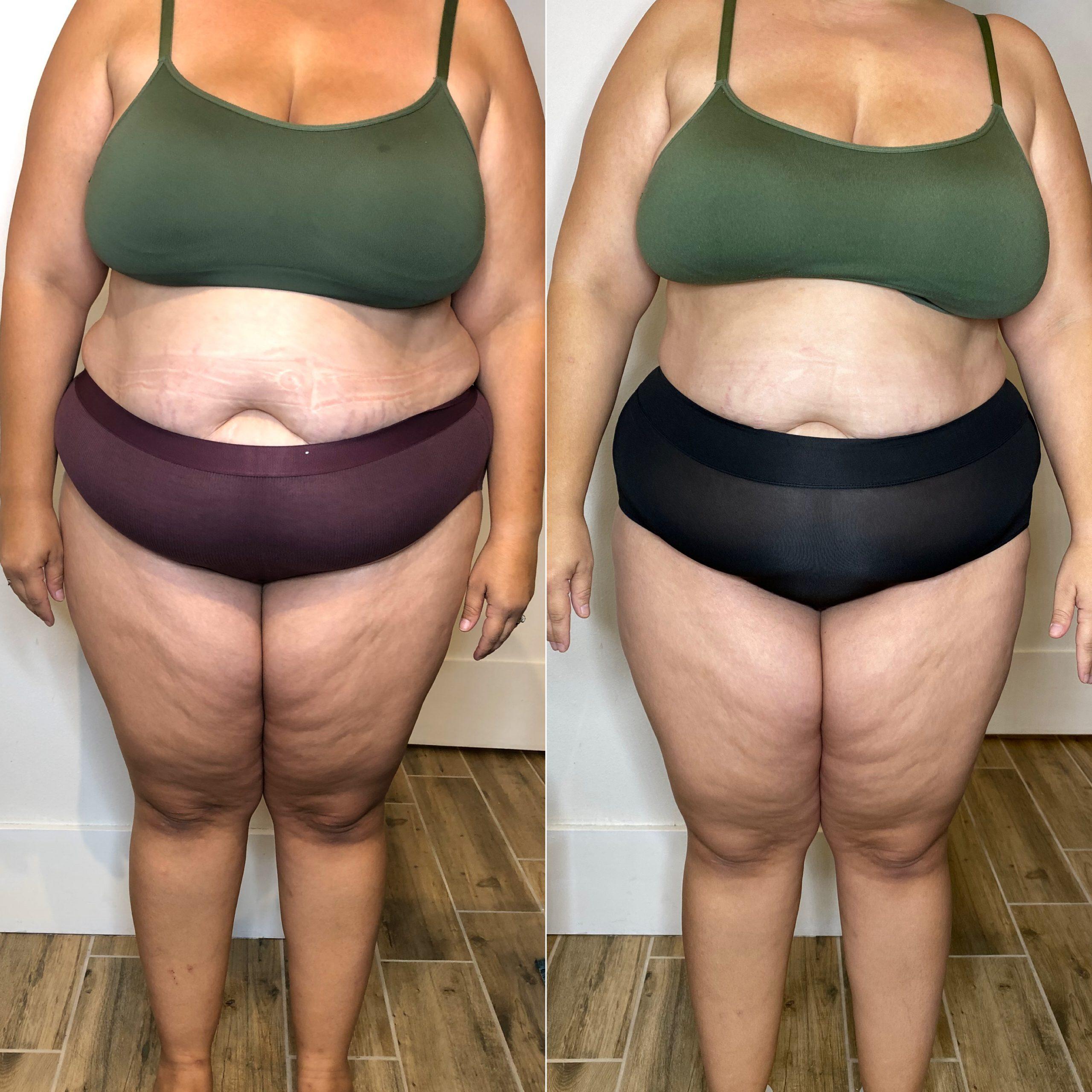 Lose Belly Fat - Verju Laser Fat Reduction - Trim Studio Has Verju in Clearwater